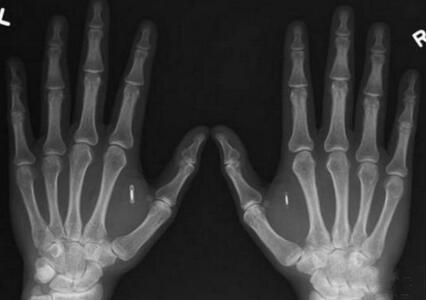 西雅图的业余生物黑客在皮下植入了RFID芯片